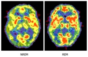 Мозг более активен во время сна