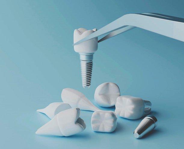 6 преимуществ имплантации зубов по технологии ReSmile